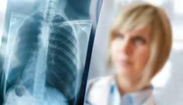 Akciğer kanserinde umut ışığı
