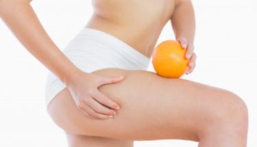 SDM diyetiyle selülitlerinizden kurtulun