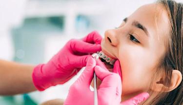 Diş teli takarken acı verir mi?