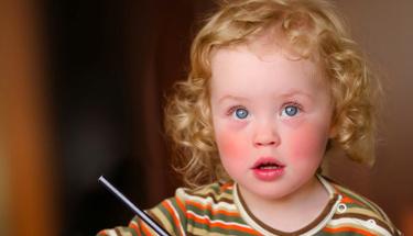 Bebeğinizin yanakları kızarıksa aman dikkat!
