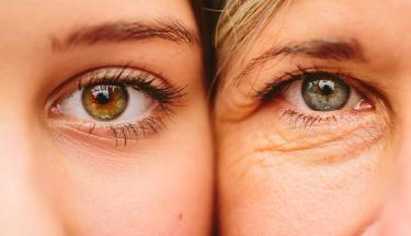 Açık tenli ve renkli gözlüyseniz dikkat!