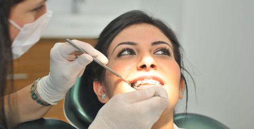 Diş Teli ile ilgili en çok merak edilen 5 soru!