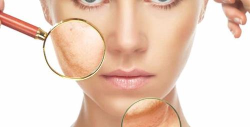 Bu alışkanlıklarınız aslında cildinize zarar veriyor!