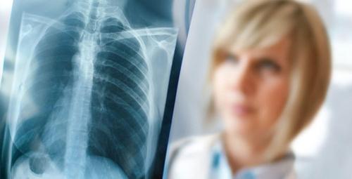 Akciğer kanseri böyle belirti veriyor! Aman dikkat!