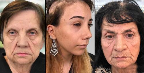 Yok böyle bir değişim 80 yaşındaki kadınları bile yarı yaşına döndürdü