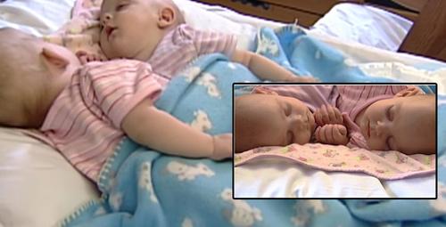 Organları bile ortaktı! Yapışık ikizlerin şimdiki halleri inanılmaz