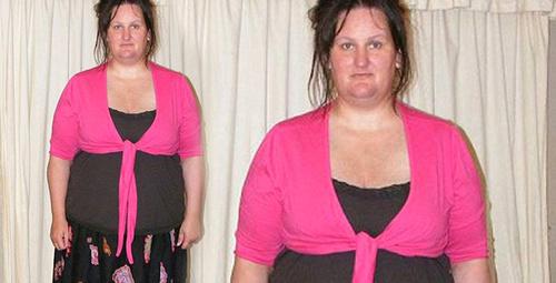 Obez kadın, Barbie bebek olmak için ameliyat oldu! Son hali inanılmaz