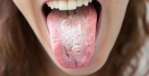 Dilinizde böyle beyazlıklar varsa bir de üstüne...