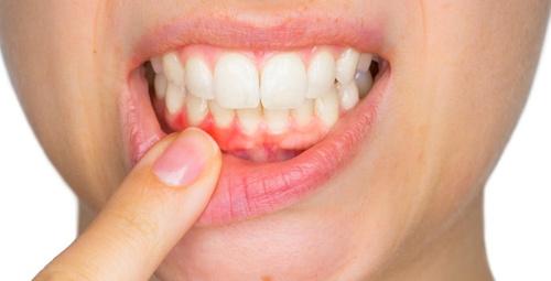 Diş eti hastalığının sebebi bu kanser türü olabilir!