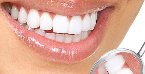 Sararan dişleri beyazlatmak için 5 öneri!