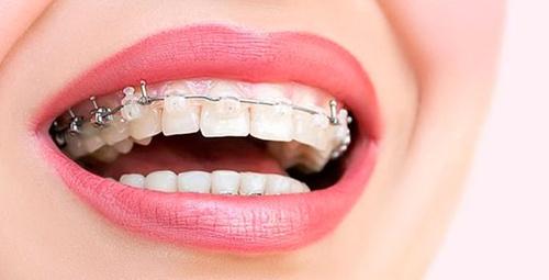 Diş teli kullananlar ağız içi bakımı nasıl yapabilir?