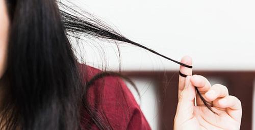 Saç yeme hastalığı: Rapunzel sendromu