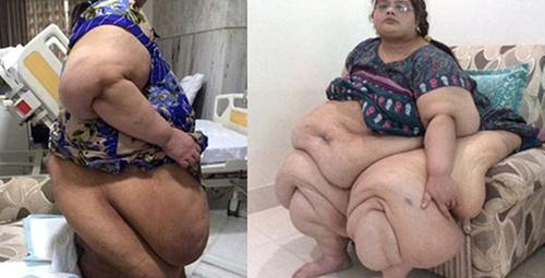 2 yılda tam 175 kilo verdi şimdi ise...
