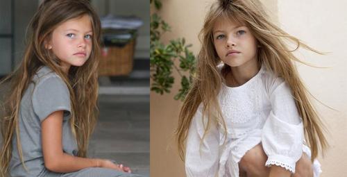 Dünyanın en güzel çocuğunun son haline bakın!