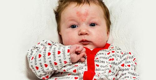 Bebeklerde doğum lekesi neden olur?