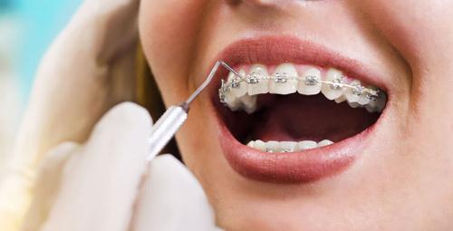 Diş teli nasıl takılır?