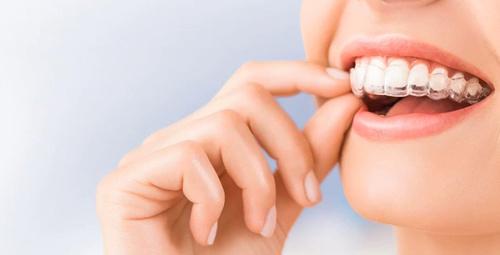 Dişlerini tel takmadan düzeltmek isteyenlere müjde!