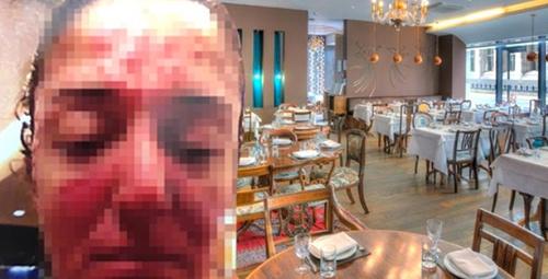 Ünlü restoran sahibi çalışanının yüzüne kezzap attı!