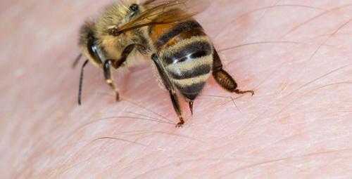 Arı sokmasına karşı ne yapmalıyız?