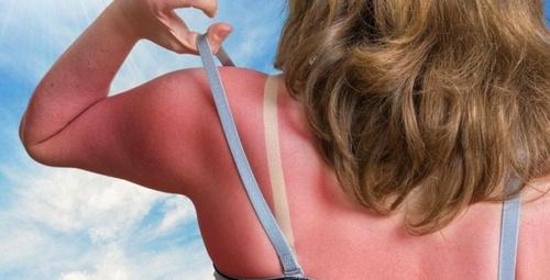 Güneş yanığı acısını geçirmenin en etkili yolu!