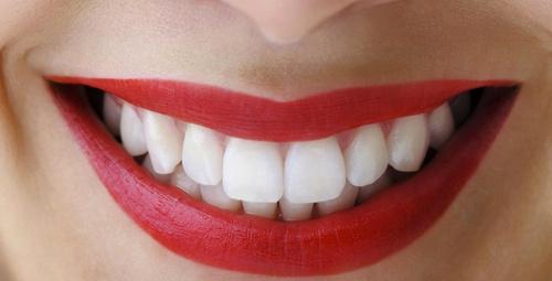 Diş tartarlarını evde doğal yöntemlerle yok edebilirsiniz!