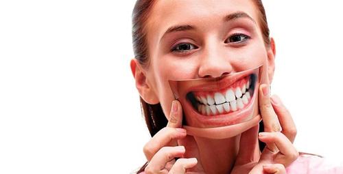 Gülerken görünen diş etleri sizi rahatsız ediyorsa....