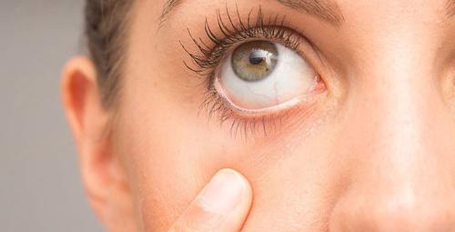 Göz hastalıklarından korunmak için bu aksesuar şart!
