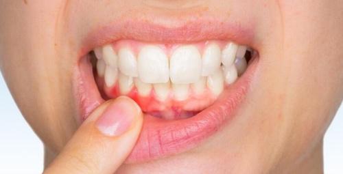 Eksik kalan diş tedavisi genel sağlığı tehlikeye atıyor! Aman dikkat