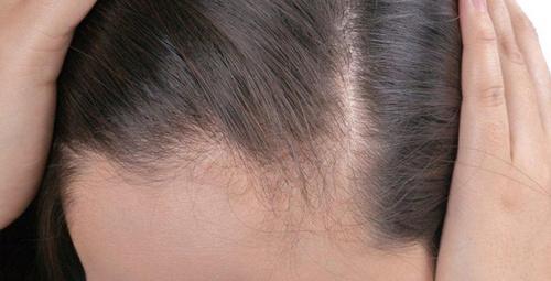 Saç diplerindeki yaraları yok ediyor!