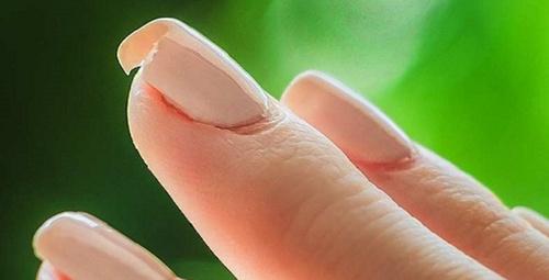 Tırnak kırılması nasıl önlenir?