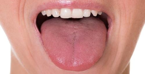 Dilinizin yapısı sağlığınız hakkında ipuçları veriyor!