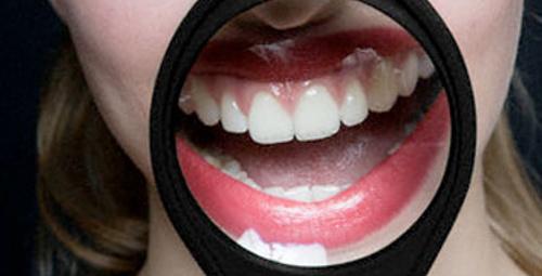 Dişlerinizi güçlendiren 5 besin!