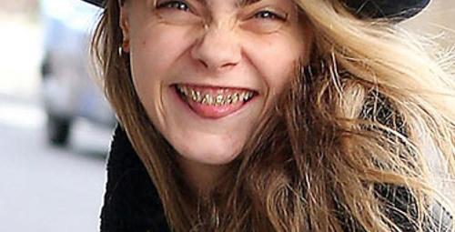 Ünlü mankenin korkunç dişleri!