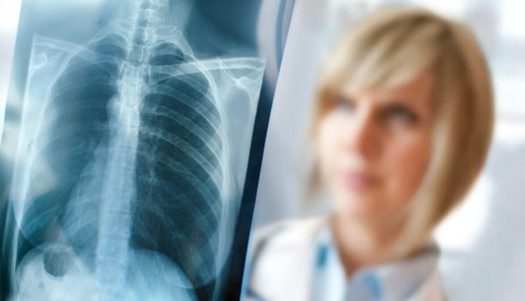 Akciğer kanseri belirtileri ve tedavi yolları