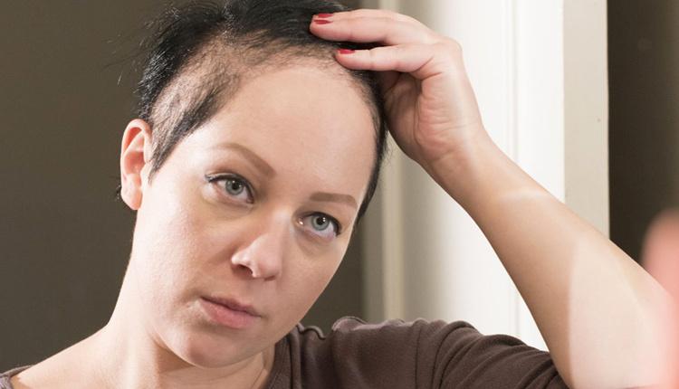 Trikotilomani nedir saçlarınızı yolmak istiyorsanız bu hastalığa sahip olabilirsiniz