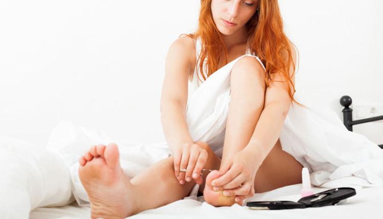 Tırnak batması nasıl önlenir ayaklarınızı kuru tutun!