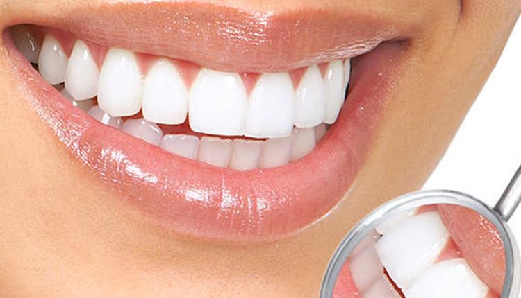 Evde diş beyazlatma yöntemleri nelerdir çileği dişinize sürerseniz...