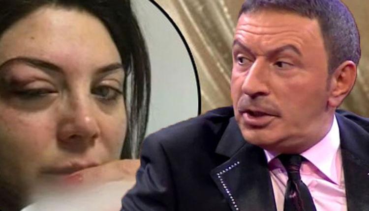 Mustafa Topaloğlu'nun eşi Derya Topaloğlu dayak olayını ilk kez anlattı!