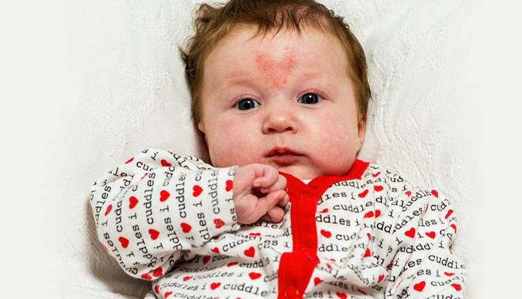 Bebeklerde doğum lekesi neden olur gözüne yakın bir yerdeyse...