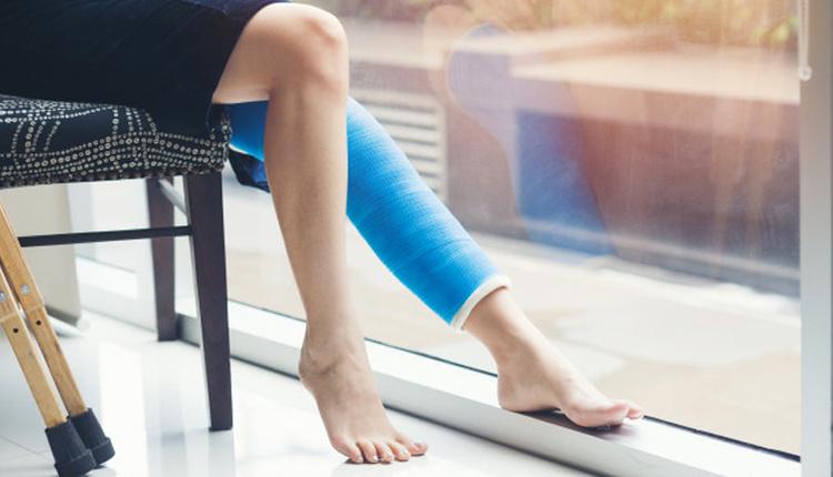Varis tedavisinde etkili yöntemler neler topuklu ayakkabılardan uzak durun!
