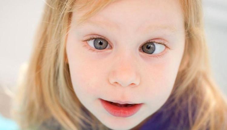 Çocuklarda şaşılık neden olur? Yüksekten düşen çocuklarda olabilir!