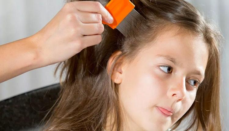 Bit nasıl temizlenir saçlarınıza vazelin sürerseniz...