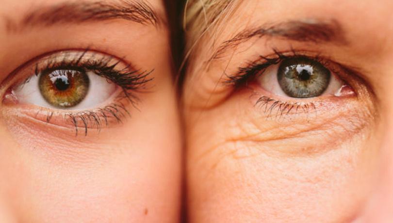 Göz kapağı düşüklüğüne ameliyatsız çözüm