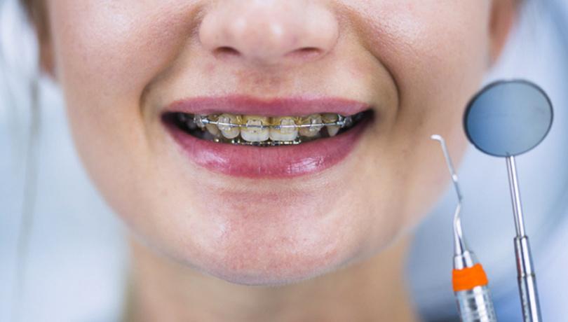 Dİşlerinizi diş teli ile fırçalarsanız...