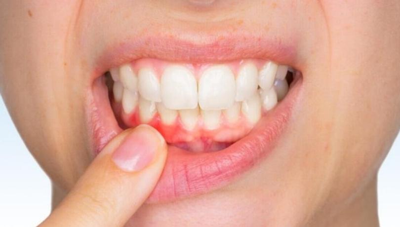 Diş etleriniz sürekli kanıyorsa aman dikkat!